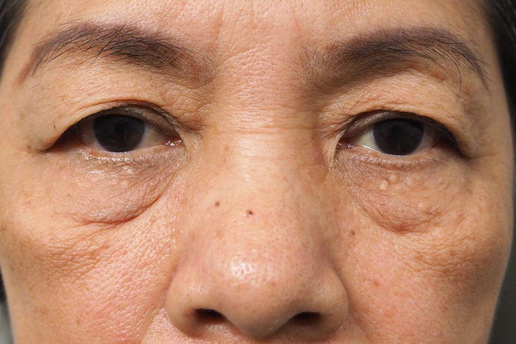 Deep Wrinkles