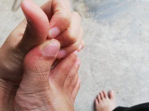 Nail Disorders